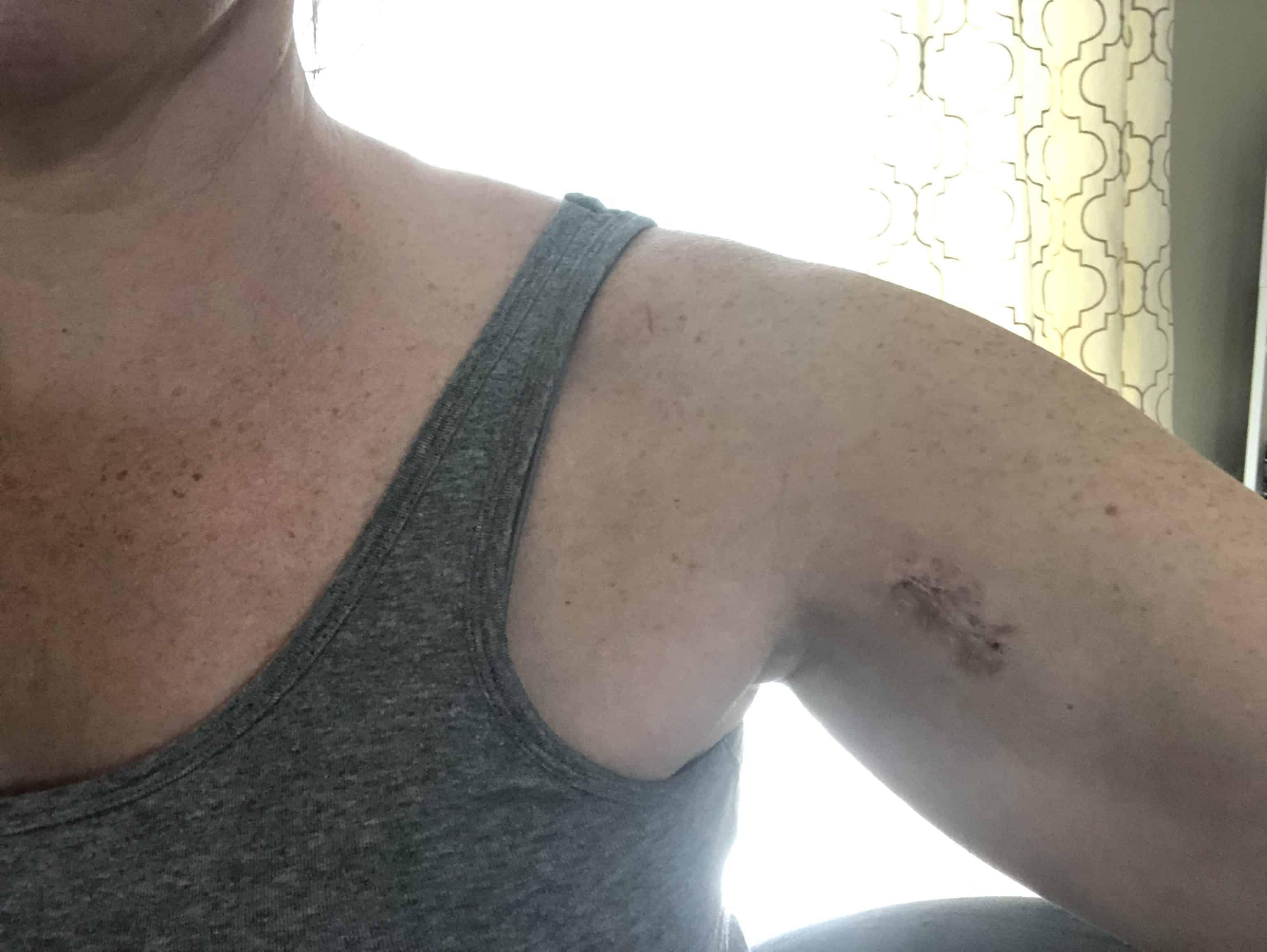Biceps tenodesis scar 3 weeks after surgery